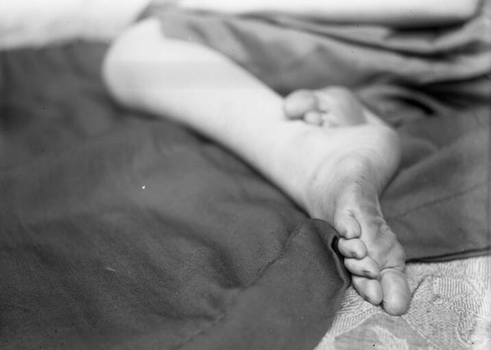 A black and white photo of a close up of girl's bare foot. The sole of the foot is slightly dirty.